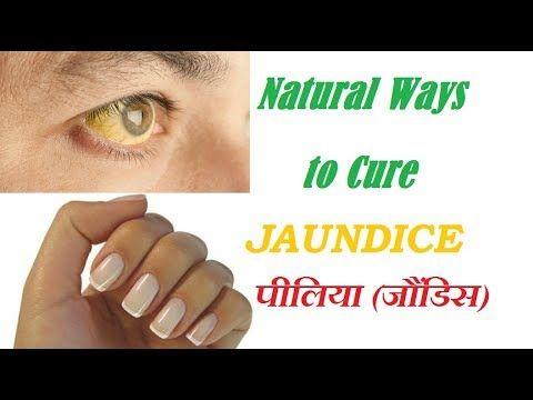 पीलिया (जौंडिस) का घरेलू उपचार   Natural Ways to Cure Jaundice
