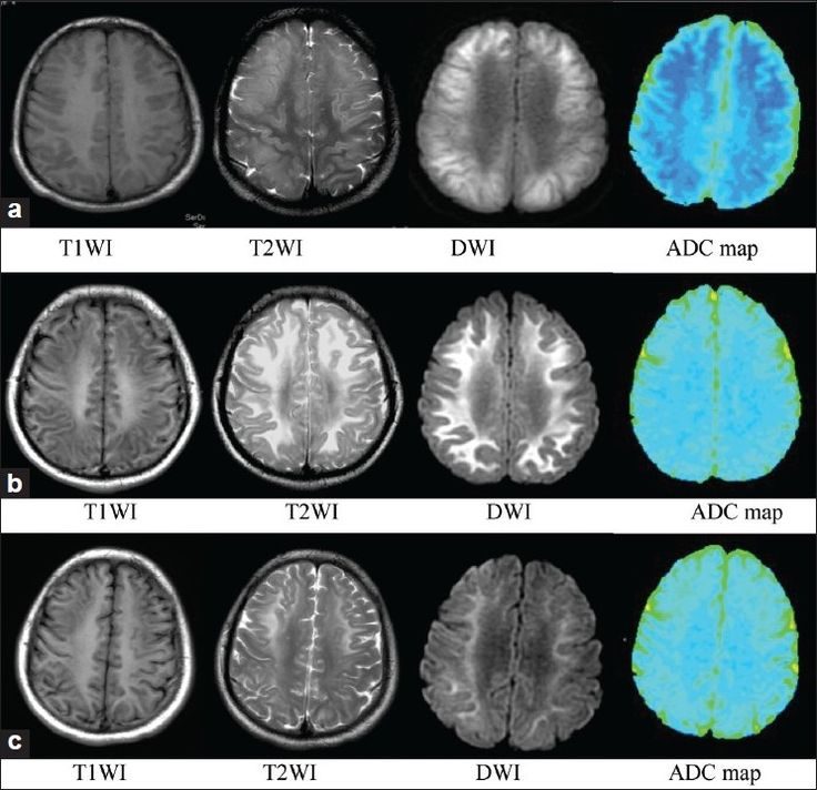 heroin encephalopathy diffusion mri -etiology. For restricted diffusion due to spongiform matrix along with CID and ms and da shearing