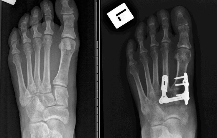 www.lisfranc.org - Lisfranc Fracture / Injury Blog