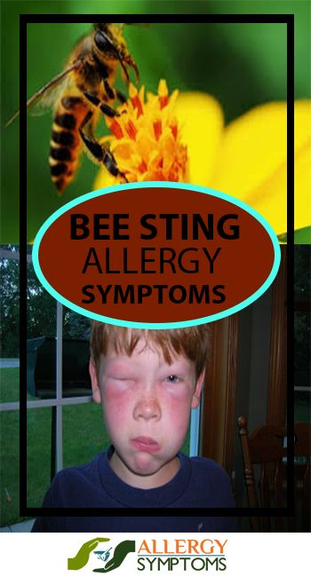 Bee Sting Allergy  http://allergy-symptoms.org/bee-sting-allergy/