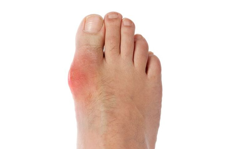 Gout affects the large joint of your big toe, but it can occur in your ankles, knees, hands and wrists. The affected joint become swollen, tender and red.