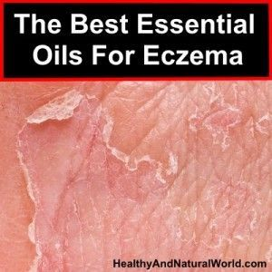 The Best Essential Oils For Eczema