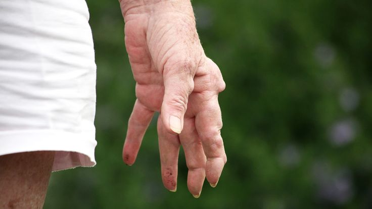 Learn about the symptoms of rheumatoid arthritis such as rheumatoid nodules. Visit EverydayHealth.com, the leading online source of health  information, for more on symptoms and treatment of  arthritis and other chronic conditions.