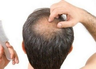 Hair loss is common among both men and women. Hair loss has many causes such as stress, lack of sleep, smoking, thyroid problem. Vitamin deficiency is also the reason of hair loss. Now you can use the simple-safe home treatments to regrow lost hair.