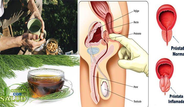 qué hacer con una próstata agrandada