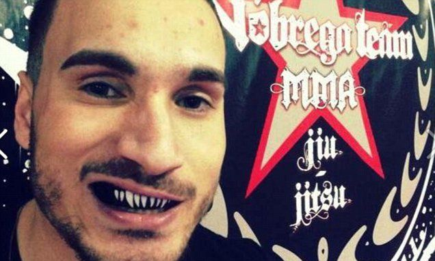 MMA fighter Joao Carvalho dies after sustaining serious injuries during bout, as UFC champion Conor McGregor says 'fight should have been stopped earlier'. (12 April 2016)