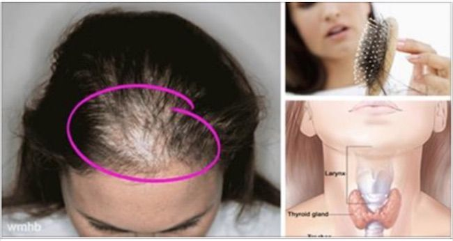 "How to Stop Hair Loss in Women- Hair loss in women is usually caused by an autoimmune disorder. I say ""usually"" because I do not want to generalize but, and this is a big but, I have yet to see a woman suffering from hair loss that isn't suffering from an autoimmune disorder in over thirty years of private practice."