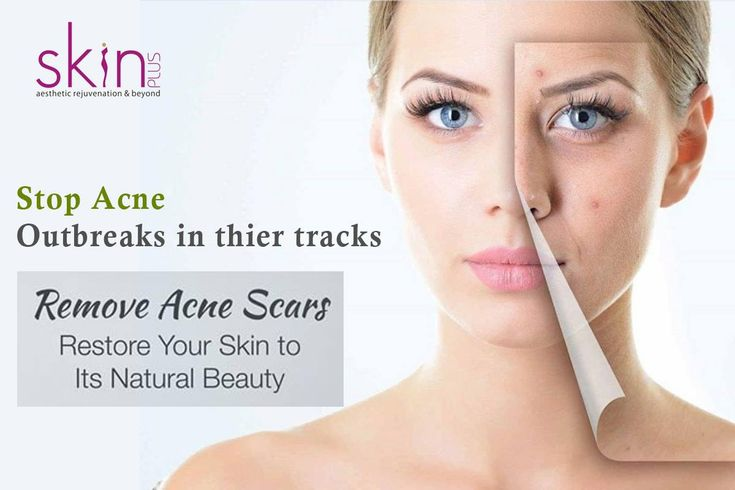 The medical name of acne is Acne Vulgaris. It is a kind of skin disease that affects the oil glands present at the root of hair follicles. Acne results from the combined action of skin cells, hair and sebum secreted from the oil glands, which together form a mass and get infected by bacteria.
