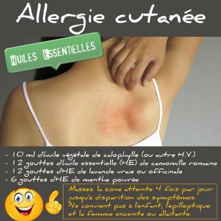 Une allergie cutanée peut être soignée avec les huiles essentielles. Découvrez nos recettes et remèdes naturels efficaces contre une allergie cutanée.