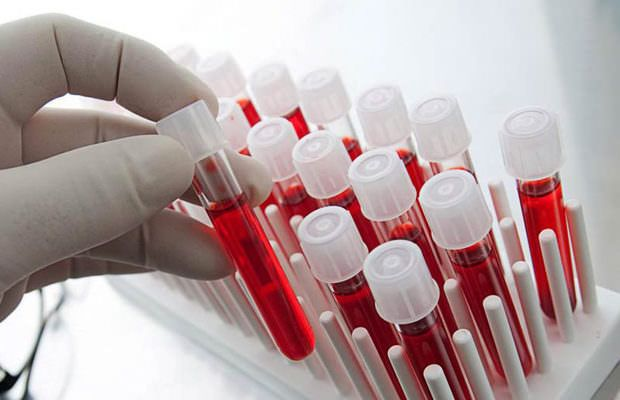 Ученые определили самую «опасную» группу крови у людей  http://da-info.pro/news/ucenye-opredelili-samuu-opasnuu-gruppu-krovi-u-ludej  Американские ученые сделали настораживающее открытие - они выявили наиболее «опасную» группу крови у людей, которая более предрасположена к нарушениям в работе головного мозга, приводящим к умственной деградации. В процессе большого исследования научным работникам удалось определить взаимосвязь между группой крови и некоторыми болезнями, которые чаще всего…