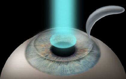 What is Lasik Eye Surgery - http://eyemagz.com/what-is-lasik-eye-surgery.html