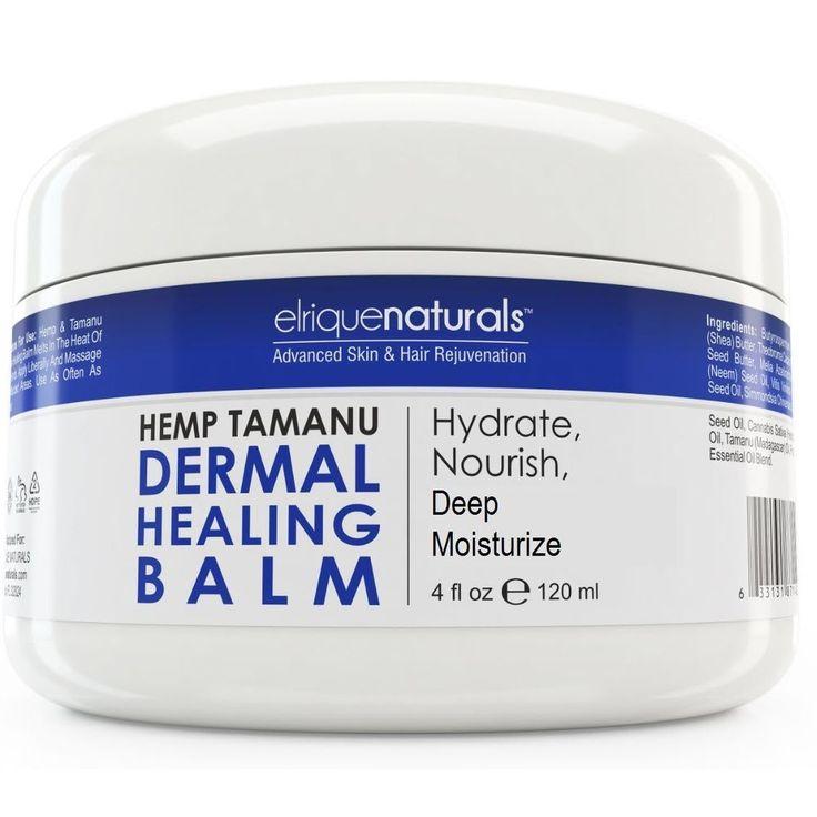 #Eczema, #Psoriasis #Cream Psoriasis #Treatment with Neem Oil Eczema Psoriasis 4oz #ElriqueNaturals