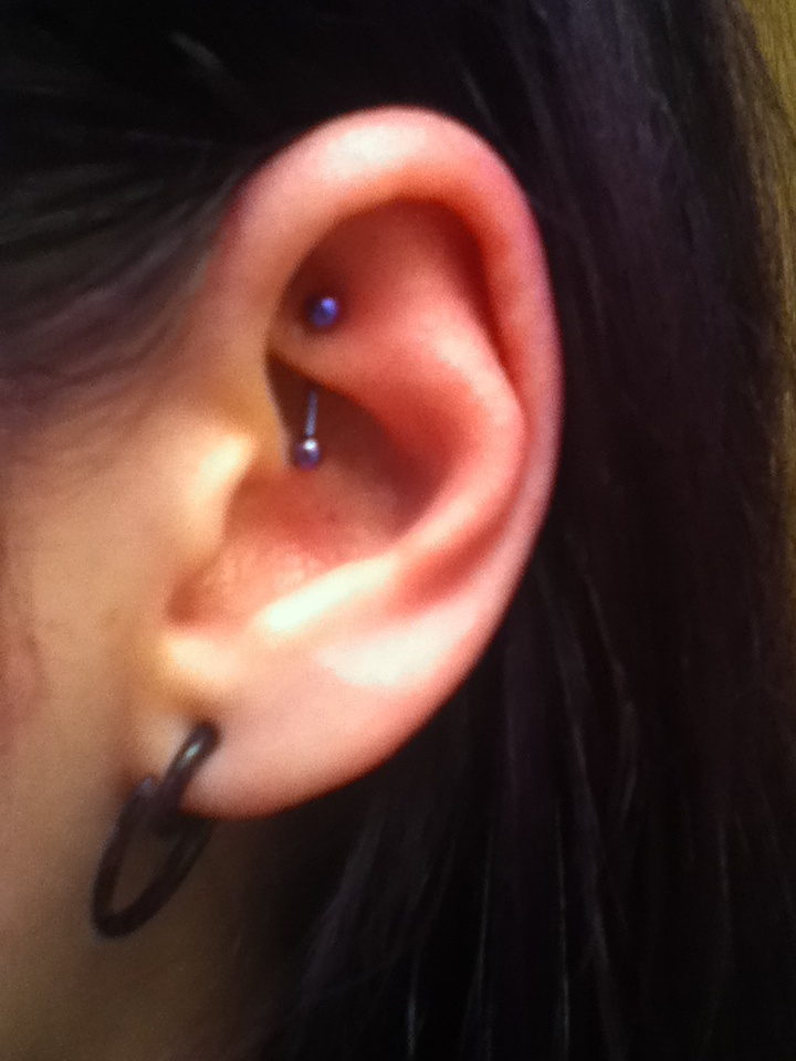I got my left rook done today! :)