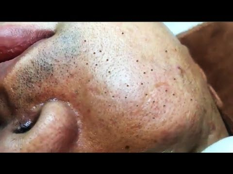 how to clear your face of blackheads and pimples