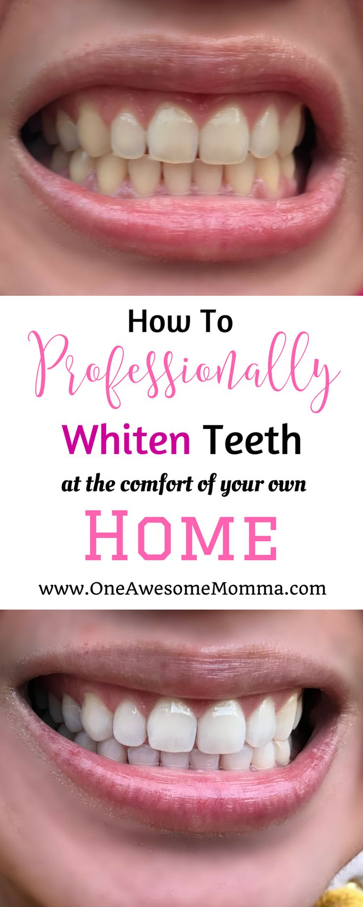 Did you ever wish your teeth were whiter? Are you tired of using different teeth whitening products that don't deliver. Check out this in-home whitening kit that you can do at the comfort of your home without breaking the bank. | teeth whitening | teeth w http://getfreecharcoaltoothpaste.tumblr.com