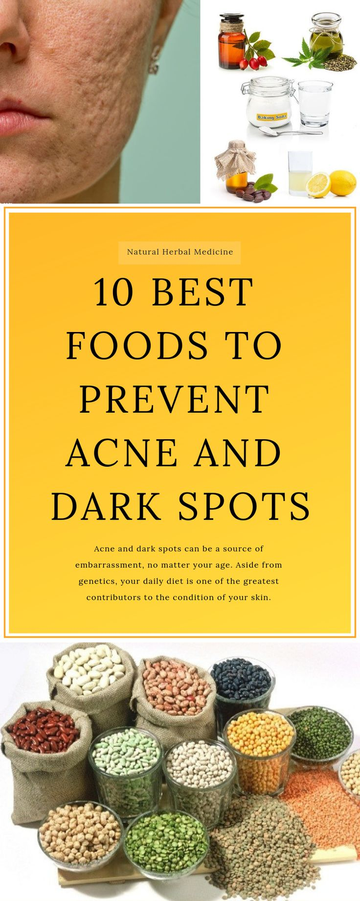 10 Best Foods To Prevent Acne And Dark Spots