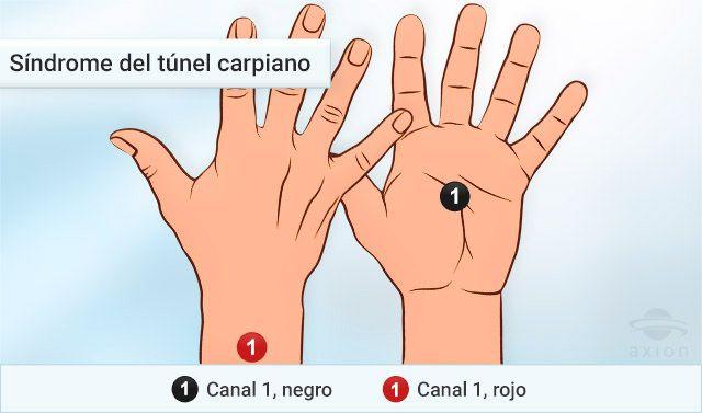 Sindrome del tunel carpiano tratamiento con electroterapia