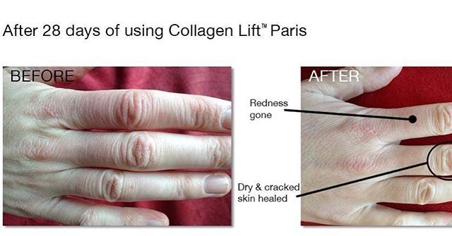 You can't botox your hands and neck. Drink Collagen Lift™ to hydrate, plump and soothe your skin from head to toe. Beauty from within.  Soon available online.