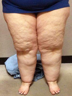 Lipoedeem oftewel lipo-oedeem wordt ook nog weleens de 'Ziekte van Allen-Hines' genoemd. Het betreft een 'goedaardige' aandoening die wordt gekenmerkt door een ongelijkmatige, maar altijd symmetrische stapeling van abnormaal vetweefsel en vocht in het lichaam. Het belangrijkste kenmerk is zonale