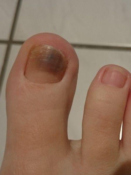 Achtung, blau-schwarze Flecken unter den Finger- oder Fußnägeln können ein Zeichen für Hautkrebs sein. Welche Verfärbung welche Krankheit anzeigt.