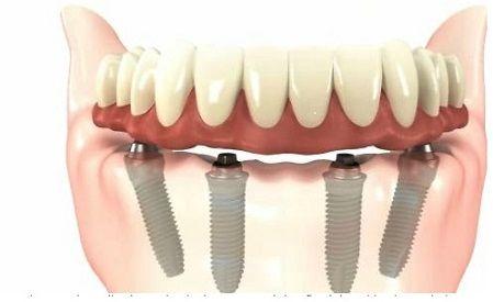 """Si vous portiez une prothèse à ce jour et vous n'êtes pas satisfait, votre capacité à mâcher peut être restaurée par le placement de la solution """"All on 4"""". Ni la greffe osseuse, ni le sinus lift n'est nécessaire, donc le cout total """"All on 4"""" pour un arc cout 5922 EUR. Ce prix comprend quatre implants dentaires et des piliers, un balayage 3D, les frais chirurgicaux, des médicaments , une prothèse provisoire et une prothèse définitive """"All on 4"""". Donc, pas de coûts cachés."""