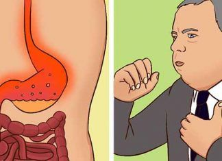6 Home Remedies for Acid Reflux