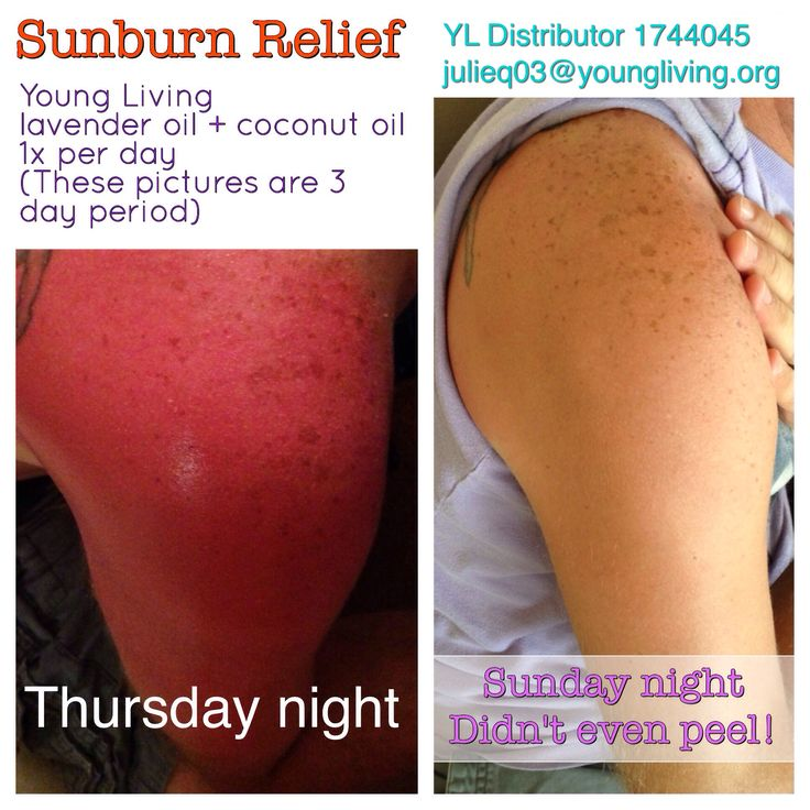 Sunburn relief, Young Living essential oils are AMAZING! My husband got a really nasty sunburn on a Thursday. Mixed 4 drops lavender with a small bit of coconut oil (1/2 tsp or less) and applied to his shoulder (made same amount for other shoulder.) I did this once a day at night.  By Sunday, skin was back to normal and no peeling.   #youngliving
