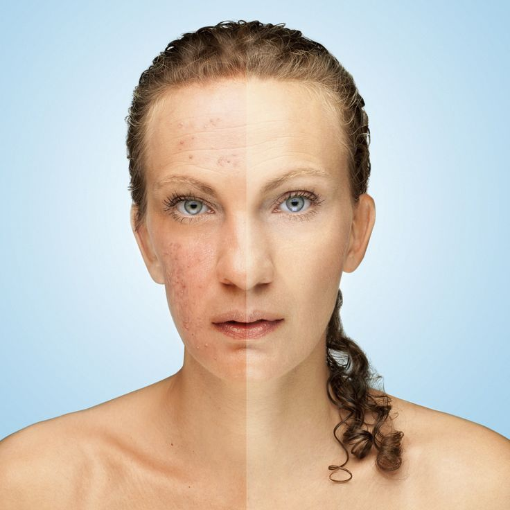 """""""For the First Time in 15 Years I'm Free of Acne"""" - http://www.dietdoctor.com/wp-content/uploads/2016/02/Acne-000059856542_Large-1600x1600.jpg - http://lowcarbyogurt.org/for-the-first-time-in-15-years-im-free-of-acne/"""