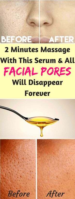2 MINUTES MASSAGE WITH THIS SERUM AND ALL FACIAL PORES WILL DISAPPEAR FOREVER - Workout Hit