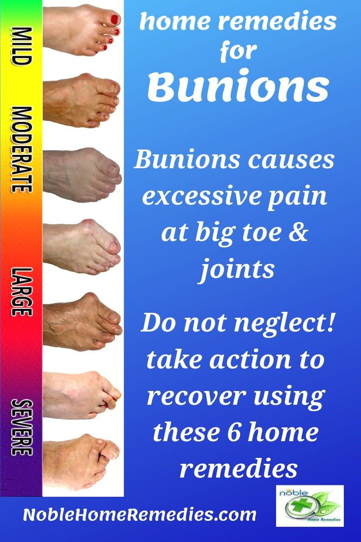 Home remedies for bunions bunion remedies remedies