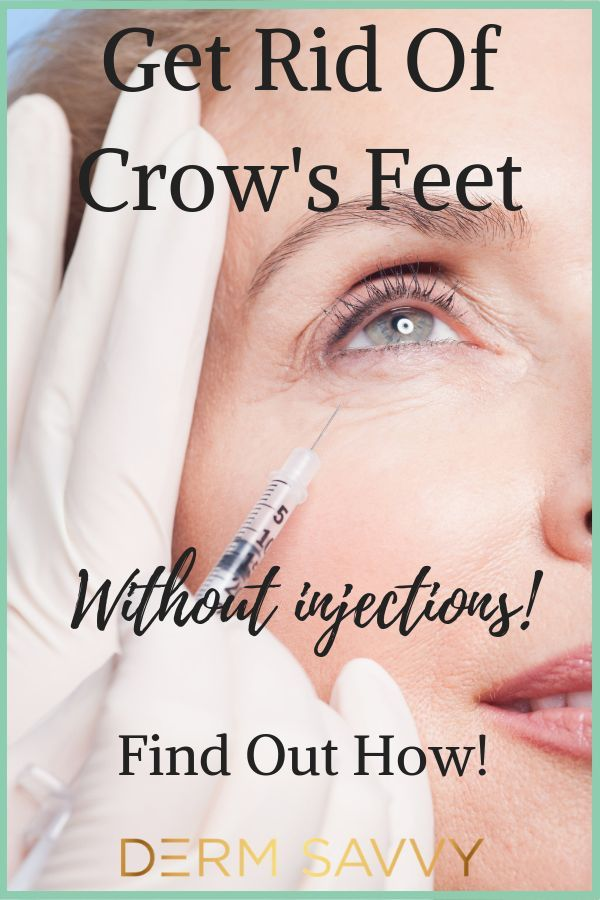 bd64434108bf14426accda996a0a85ef - How To Get Rid Of Eye Wrinkles And Crow S Feet