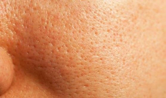 Home Remedies to Get Rid of Clogged Pores