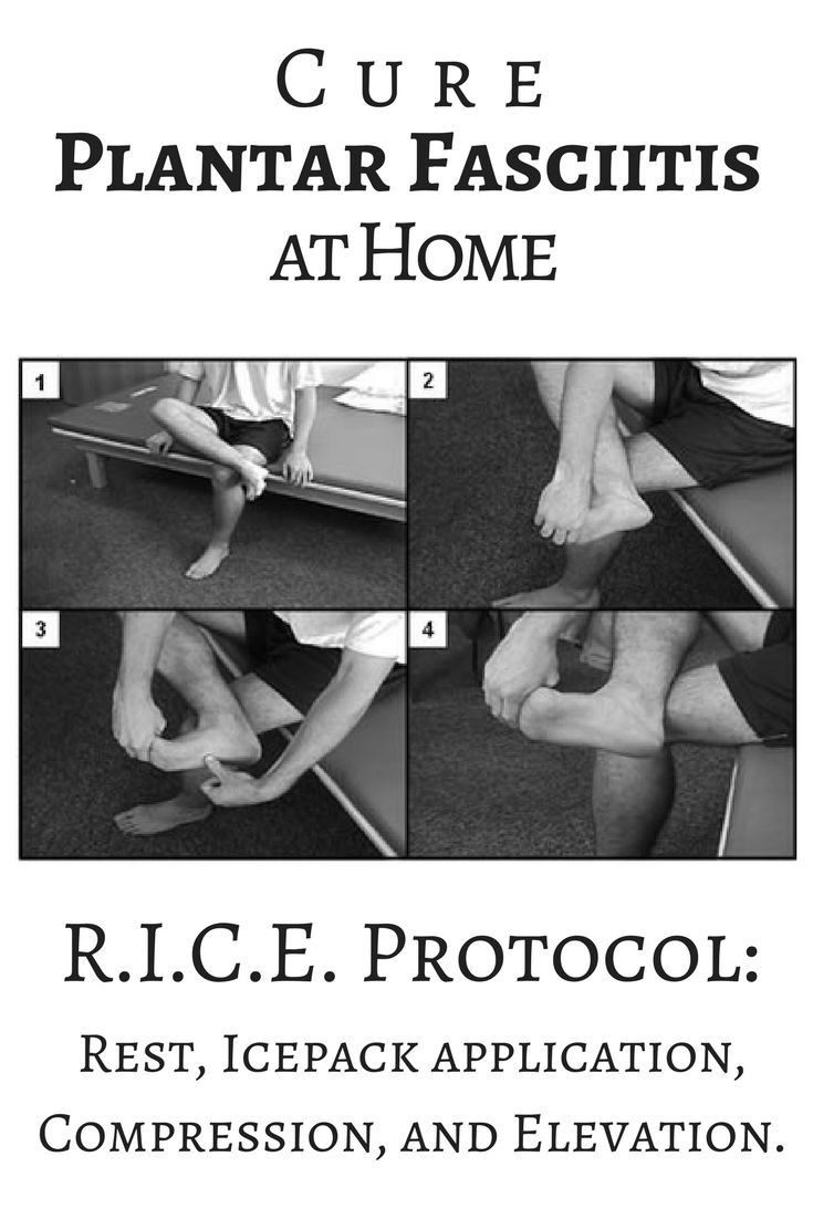R.I.C.E. is your first line of treatment for Plantar Fasciitis, and it stands for Rest, Icepack application, Compression, and Elevation.