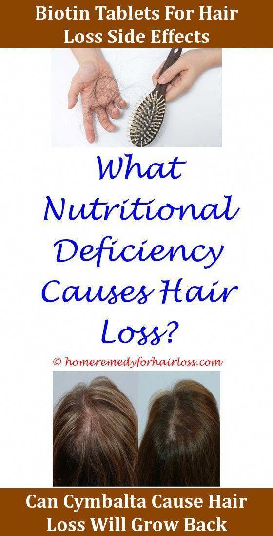 Hair Loss Factshair Loss Evra Patch Side Effects Hair Losshair
