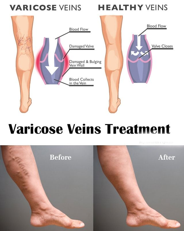 how to get rid of bulging veins