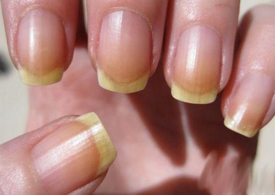 Tratamente de ingrijire pentru unghii cu probleme