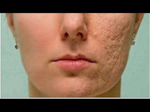 Frote esto en cualquier cicatriz, arruga que tiene en su piel y desaparecen en cuestión de minutos! - YouTube