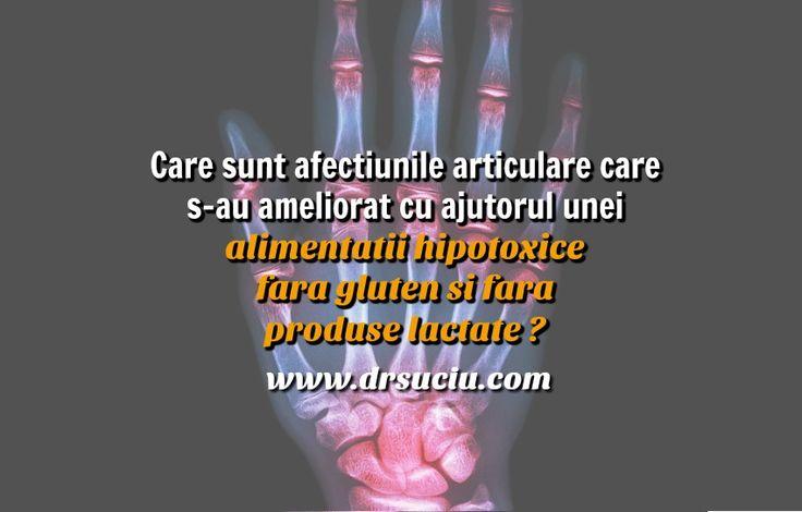 Photo drsuciu Afectiunile articulare ameliorate datorita unei alimentatii hipotoxice