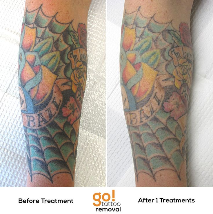 After 1 laser tattoo removal treatment were seeing great