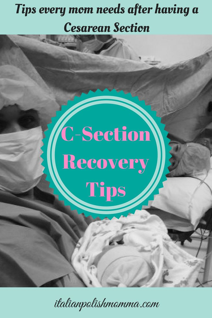 25 Best Ideas About C Section Recovery On Pinterest C