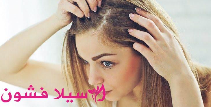 اسباب قشرة الشعر وعلاجها سيلا فشون Ear Cuff Ear Fashion