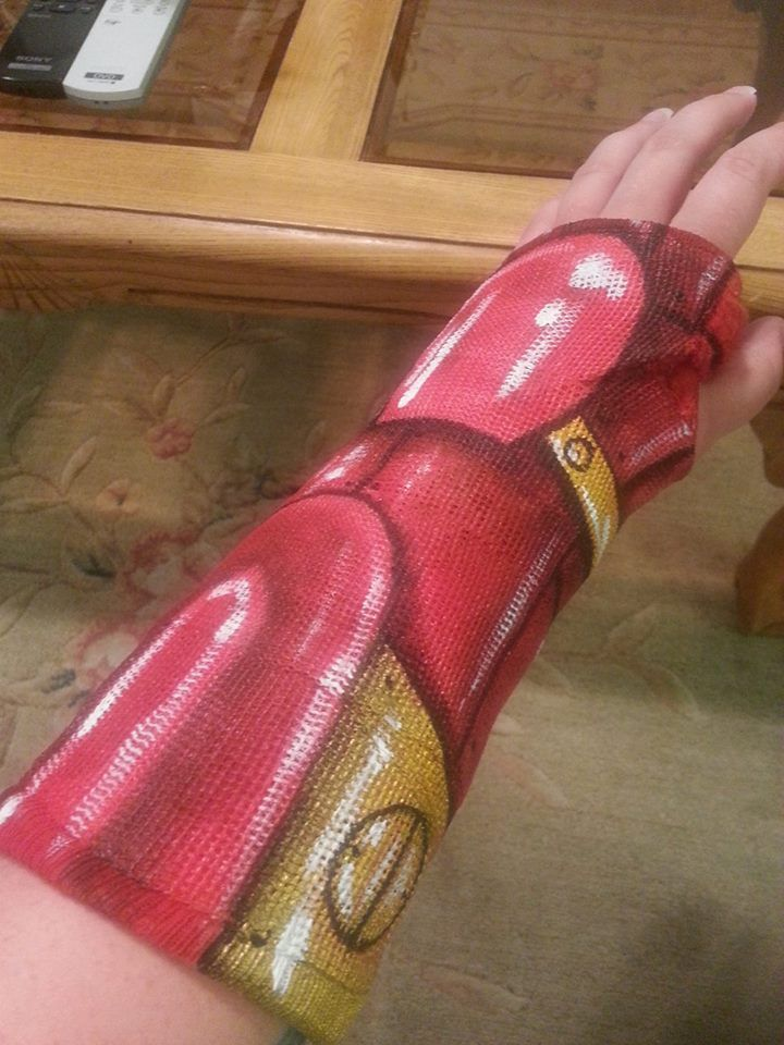 Iron Man Brocken Arm Cast