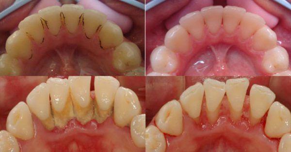 Boj proti zubnému kameňu nebol nikdy jednoduchší! Tento babský trik je jednoduchý a zaručene vám pomôže