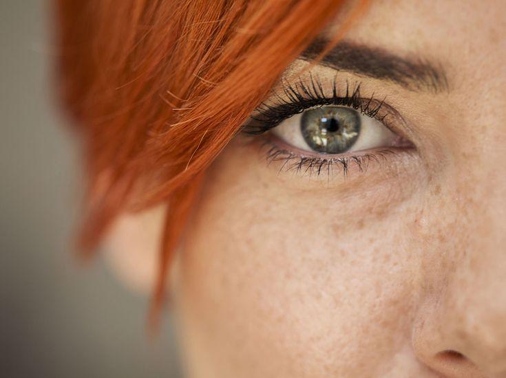 Fäden Im Auge