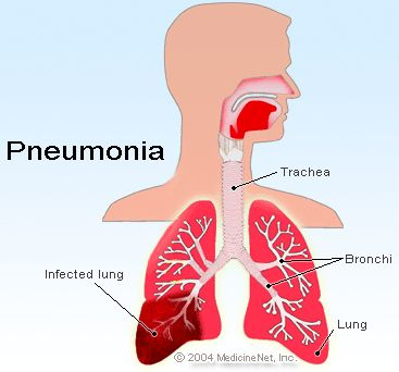 Streptococcus Pneumoniae impacts human health because it can cause pneumonia or secondary meningitis and is the leading cause of invasive bacterial disease in children and the elderly.