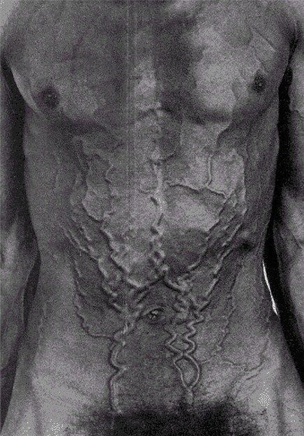 Superior Vena Cava Syndrome. The photograph shows massive engorgement of collateral subcutaneous veins of the chest and abdomen in a 58-year-old man with partial obstruction of the superior vena cava caused by small-cell lung cancer.