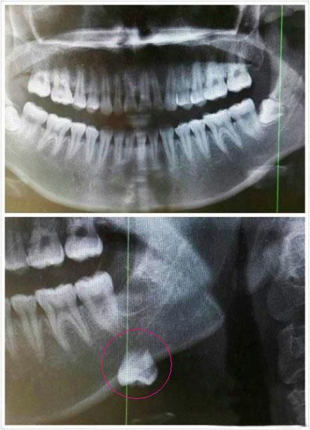 The Wisdom Tooth Unexpectedly Goes Into The Submandibular