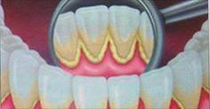 La placca è la conseguenza dell'accumulo di batteri sui nostri denti. E' molto dannoso, spesso [Leggi Tutto...]