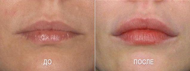 Увеличение губ филерами на основе гиалуроновой кислоты - фото до и после