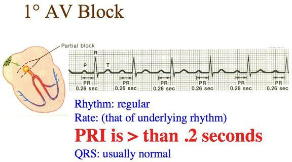 NOTE: In the interpretation always state the underlying rhythm. For example: Sinus Bradycardia with a 1st degree AV Block